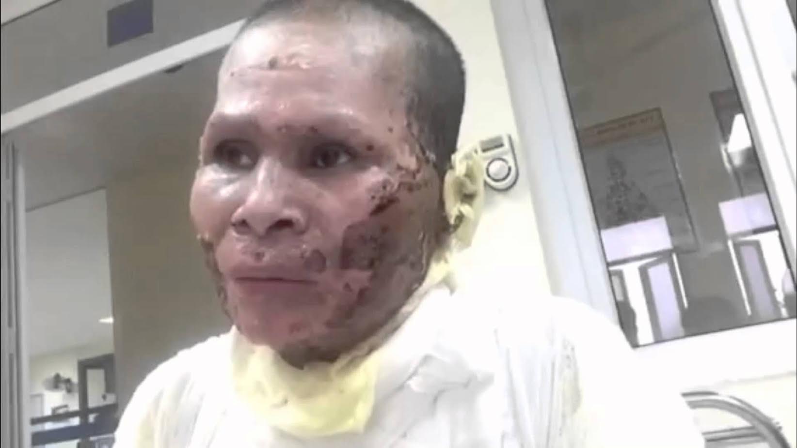Nạn nhân Phạm Thị Lê sau khi tự thiêu (ảnh; hồ sơ dân oan)