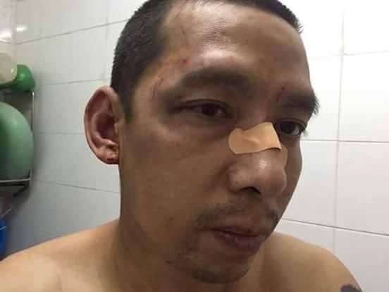 Nhà hoạt động dân sự Lã Việt Dũng bị 4 kẻ lạ mặt đánh thương tích khi đến tham dự phiên xử (ảnh: facebook Van Hai Nguyen)