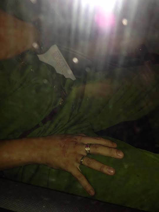 Nạn nhân Nguyễn Thị Thu Thảo với phần đầu bê bết máu (ảnh; Facebook Nguyễn Nữ Phương Dung)