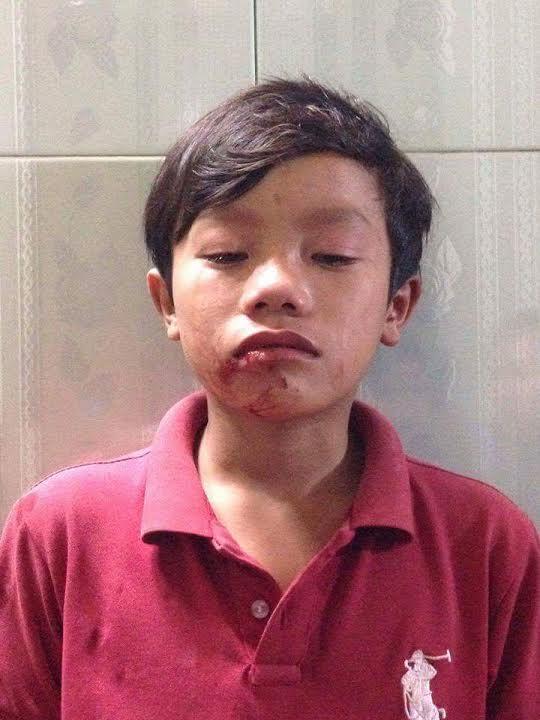 Em Nguyễn Ngọc Thắng với vết thương nơi miệng sau khi bị thầy Dự đánh (ảnh; Facebook Lee Jong Suk)